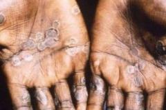 penyakit-monkeypox-34